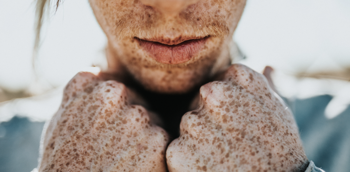 What causes dark spots on face and how to remove them